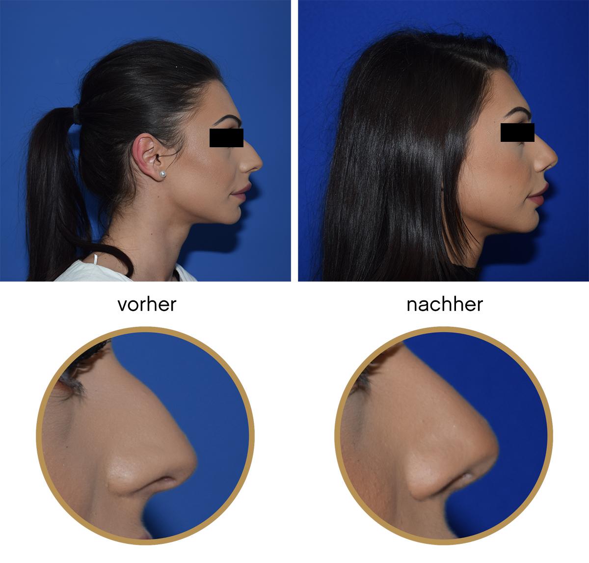 Nasenkorrektur Vorher Nachher Fotos und Erfahrungsberichte